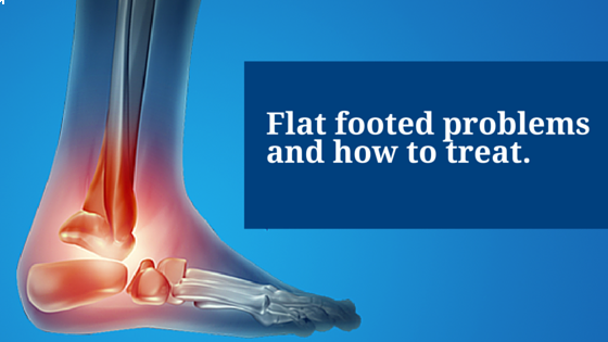 Flat Footed Problems and How to Treat Them